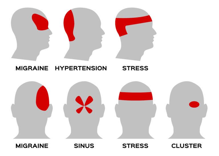 Виды головных болей картинка